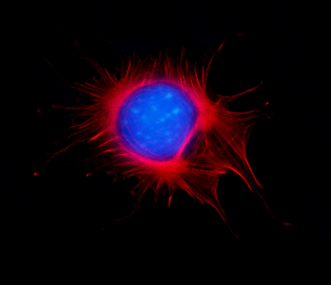 Visualizing Actin in Fixed and Live cells
