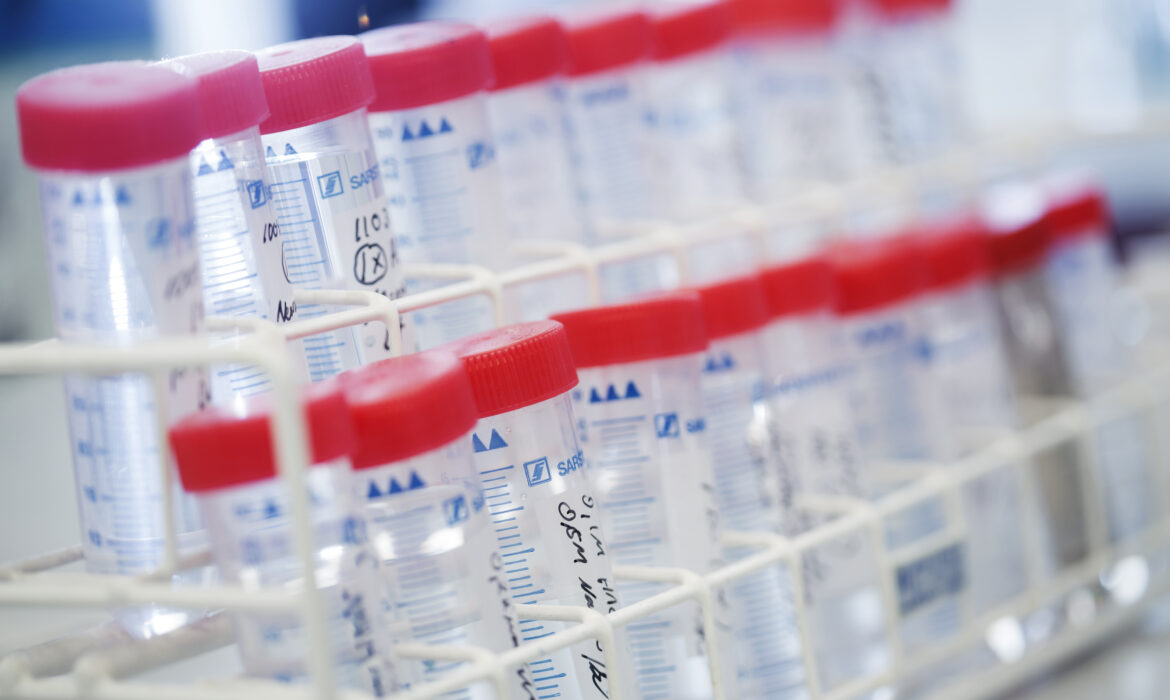 Biomarkers – valuable tools for making informed decisions