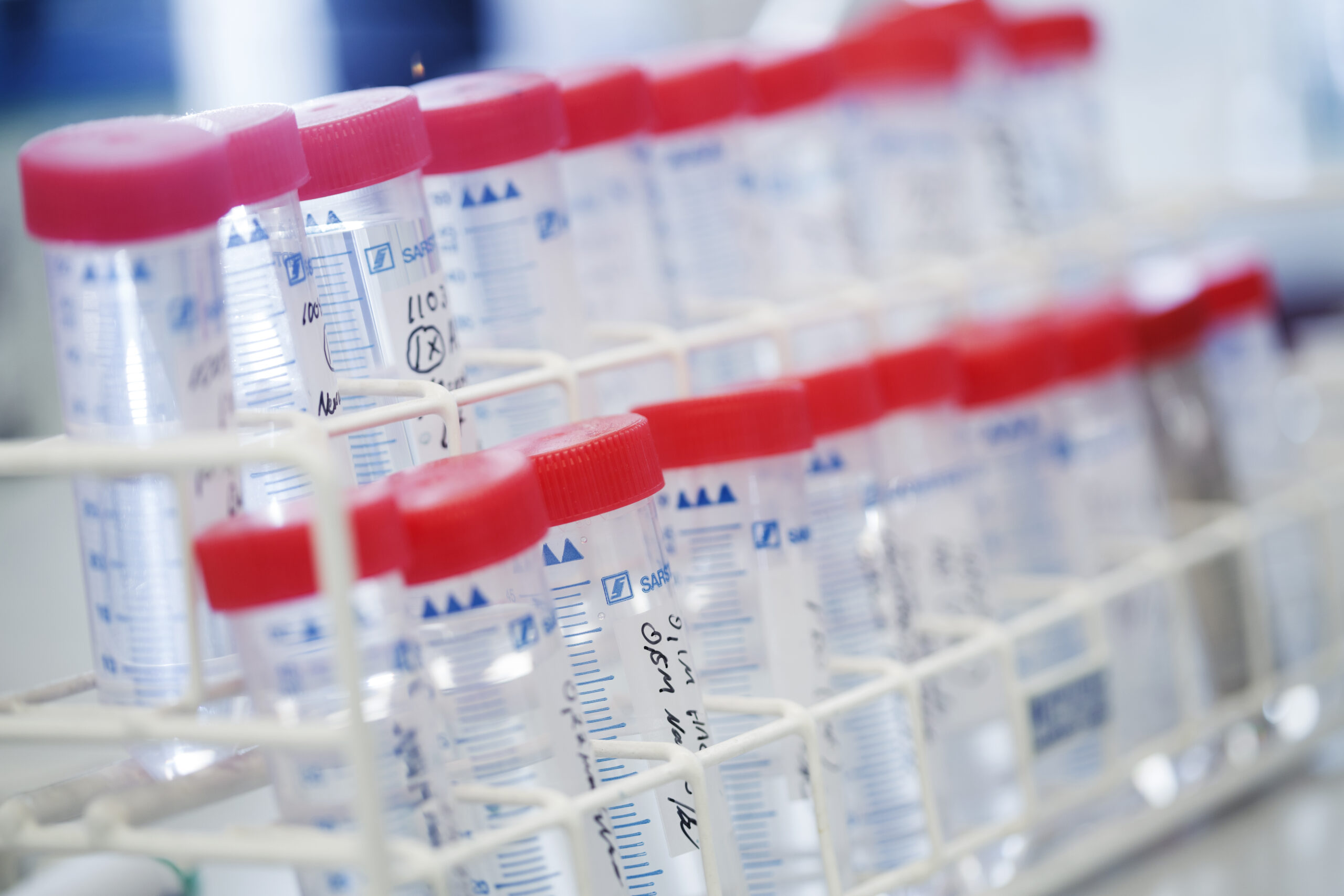 Biomarkers - valuable tools for making informed decisions