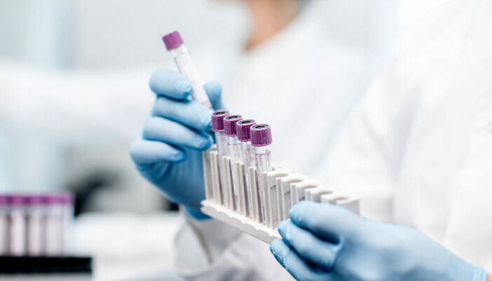 Herantis Pharma announces follow-up review from Phase I trial