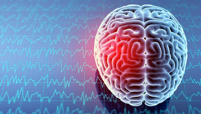 Medicortex initiate clinical trial