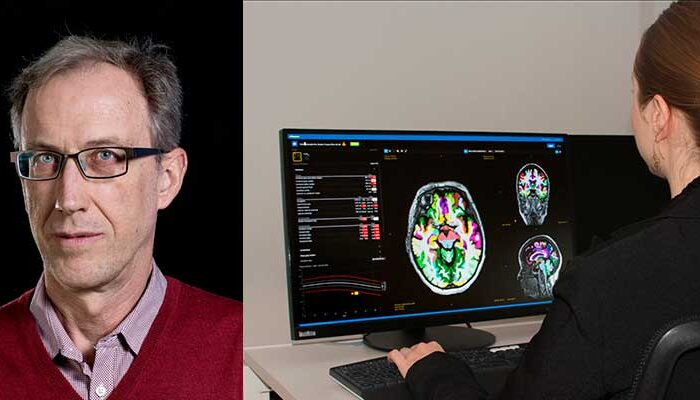 Interview: Using AI to improve early diagnosis