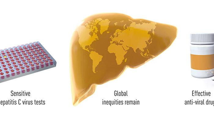 Trio wins Nobel Prize in Medicine for discovery of Hepatitis C virus